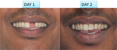 single tooth implant cost in India, Chennai