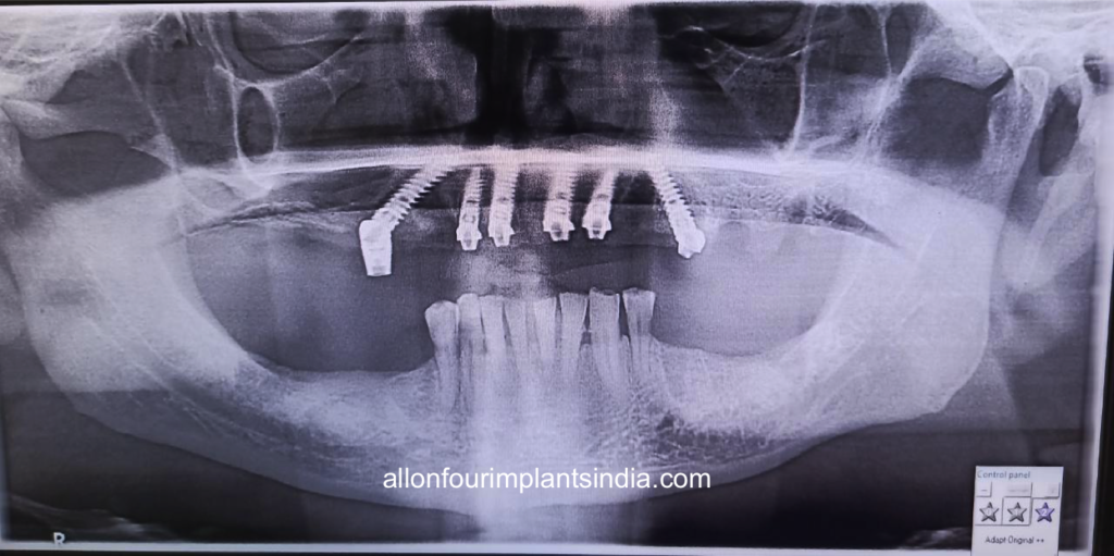 allon 6 dental implants for full teeth replacement in India
