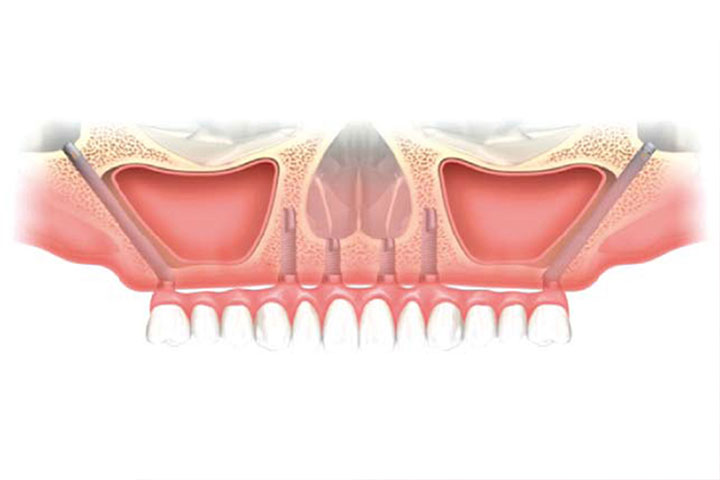 dental implant cost India