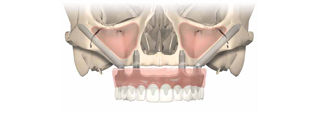 zygoma dental implant cost India, Chennai
