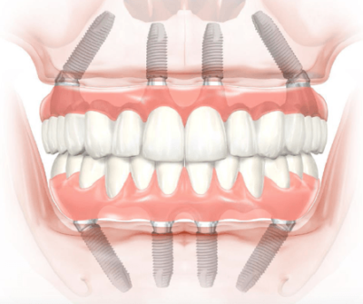 Allon four dental implants in India