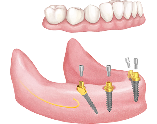 immediate fixed teeth with dental implants in India