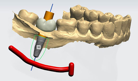 guided dental implants in India
