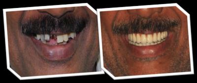 allon 4 dental implants in India, Chennai