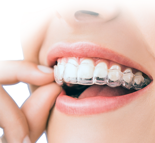 invisalign clear braces in India