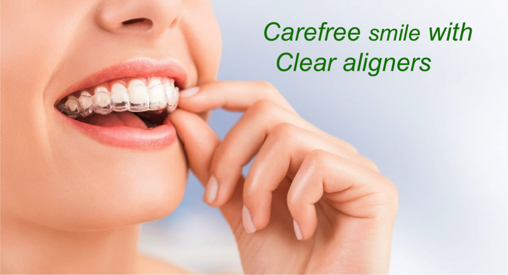 invisalign clear aligners cost in India