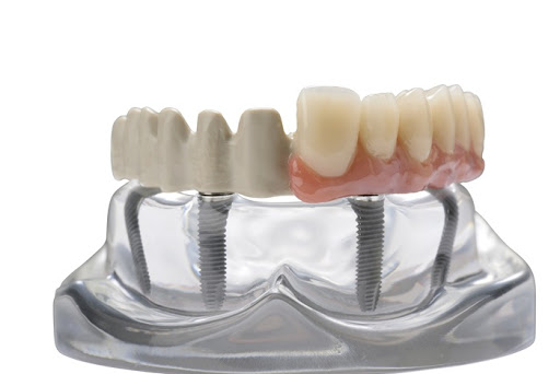 tooth implant cost in India