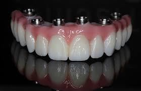 zirconia fixed tooth cost India