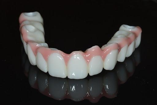 zirconia peek teeth with dental implant