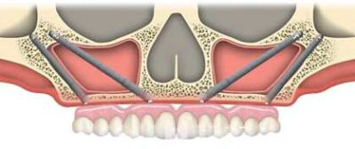 cost of quad zygoma implants in India, Chennai